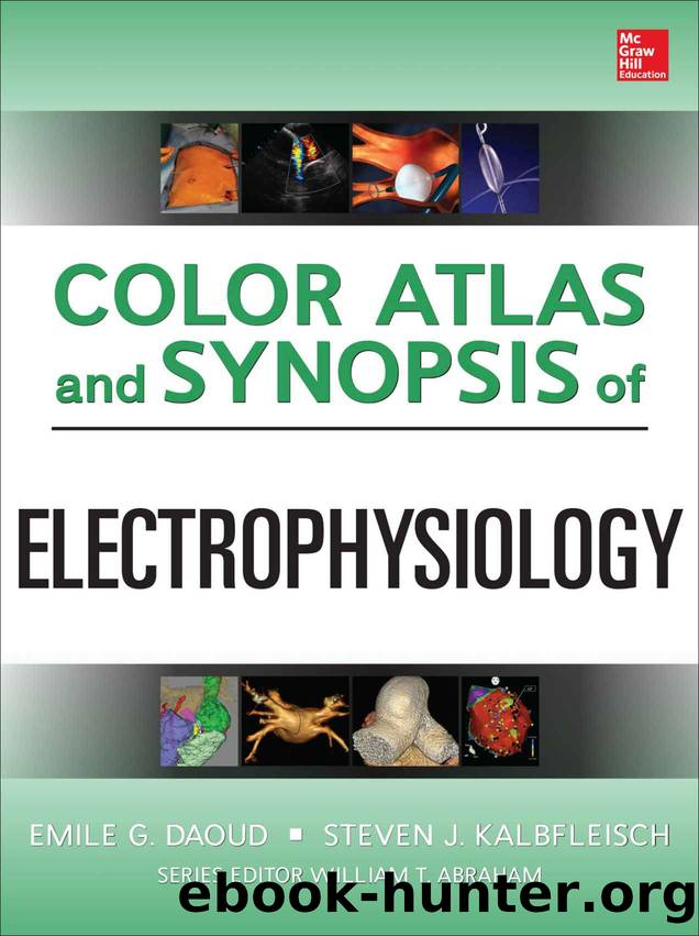 Color Atlas and Synopsis of Electrophysiology by Emile Daoud & Steven Kalbfleisch